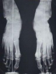 lábközépcsont törés gipszlevétel után izületi gyulladás csukló