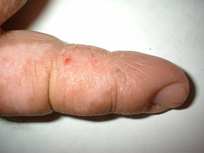Idült bőrgyulladás a bal kéz mutatóujján.