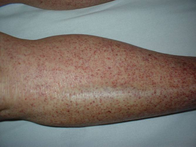 Immun thrombocytopéniás purpura