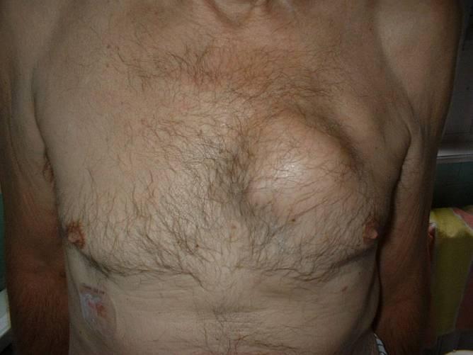 Tüdőrák, ami áttört a mellkasfalon