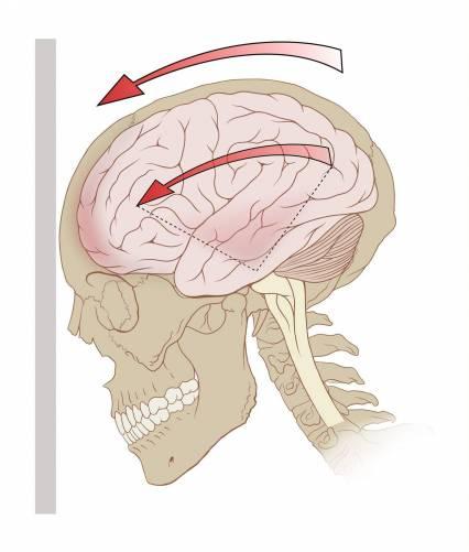 Az agyrázkódás sematikus illusztrációja