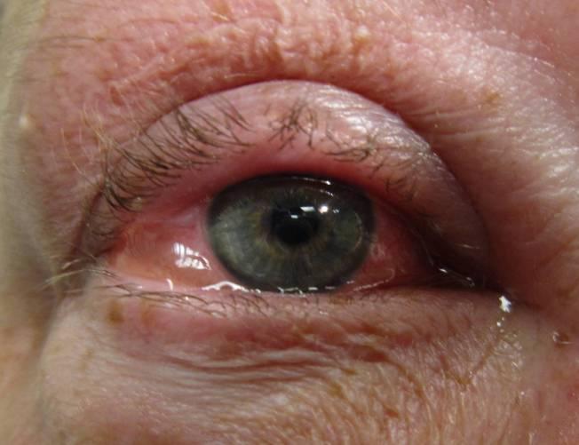 Allergiás kötőhártyagyulladás