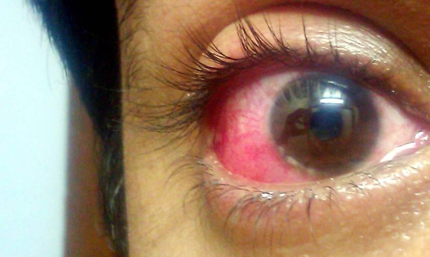 Kötöhártyagyulladás, belövellt szem