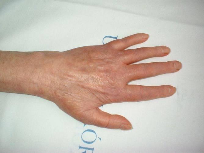 Rheumatoid arthritis kézen