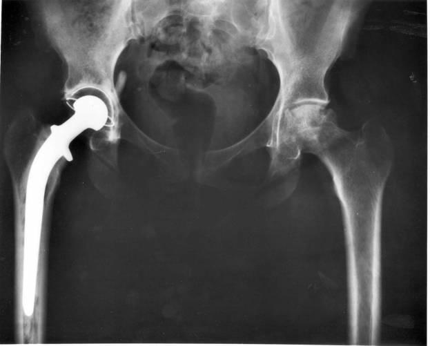 Röntgenfelvétel csípőízületi implantátumról