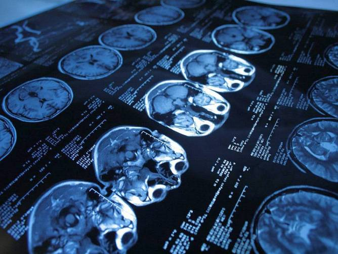 CT felvétel, csak koponya