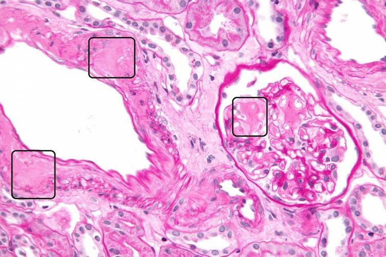 Amyloid lerakódás vesében (szövettani kép)