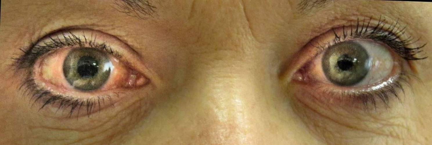 Glaukómás szem