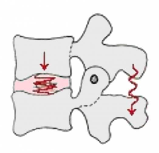 Gerincoszlopi funkcionális egység rajzos ábrázolása
