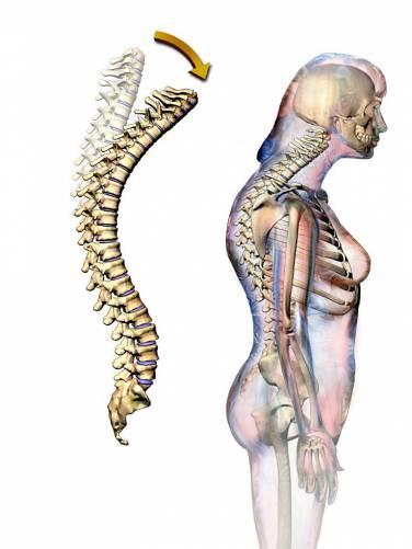 Kifotikus gerinc képe önmagában és testbe vetítve.