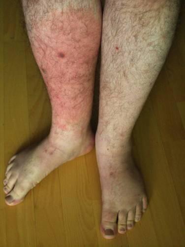 Orbánc a lábszáron, kifejezett bőrvörösödéssel