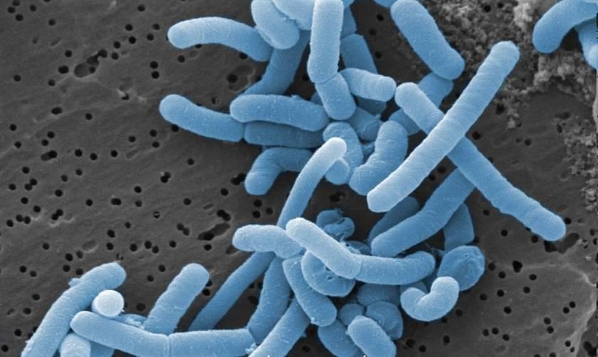Lactobacillusok elektronmikroszkópos képe