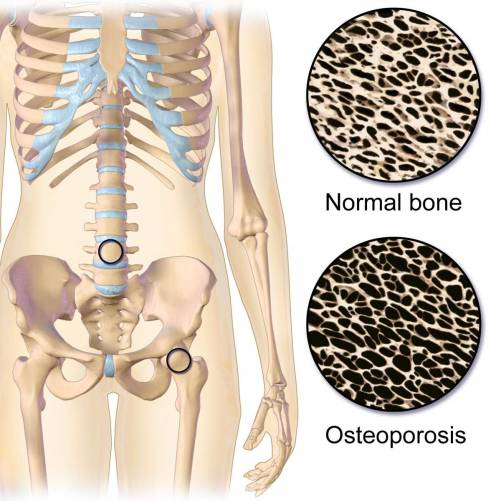 Csontritkulás szöveti kép, tipikus helyek (csigolya, combnyak).