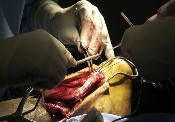 Elszakadt Achilles-ín műtéte