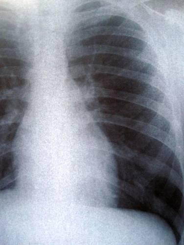 Bal mellkasfélre fókuszáló röntgenkép