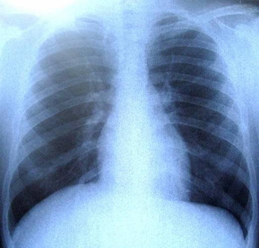 Mellkas röntgenfelvétele