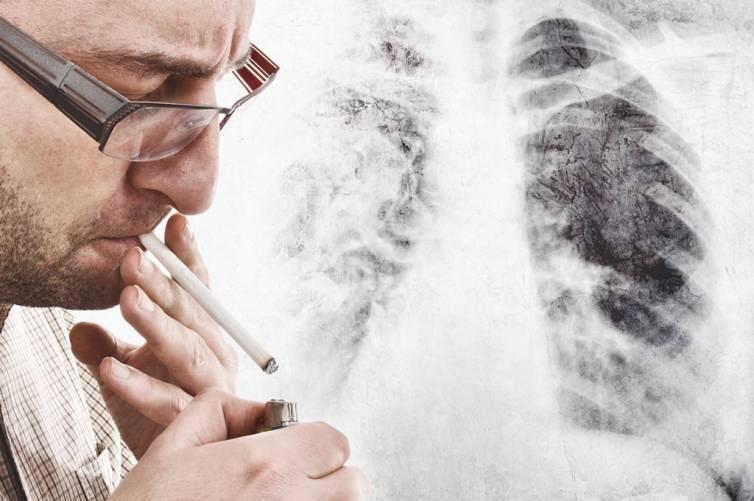 Dohányzás, tüdőröntgen