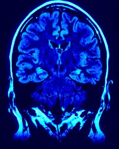 Az agy frontalis metszete képalkotó eszközzel