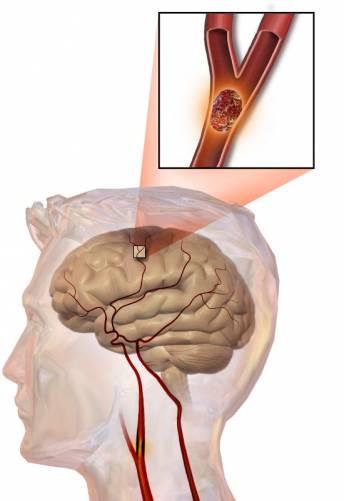 Stroke, agyi érelzáródás