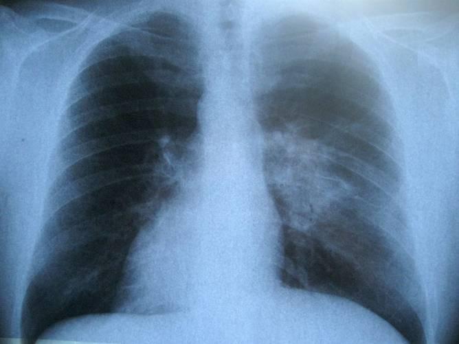 Tüdő (röntgenfelvétel)